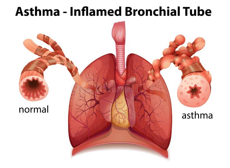 Oskrzelowa astma ilustracji