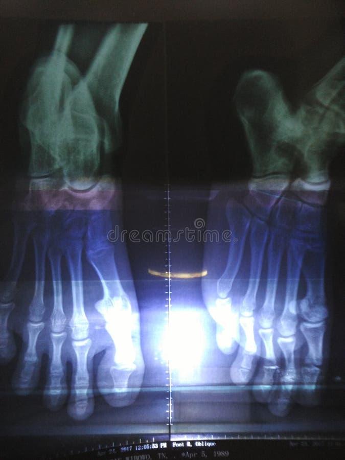 osso fotografie stock libere da diritti