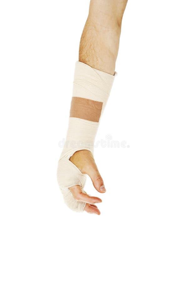 Osso de braço quebrado no molde fotografia de stock royalty free