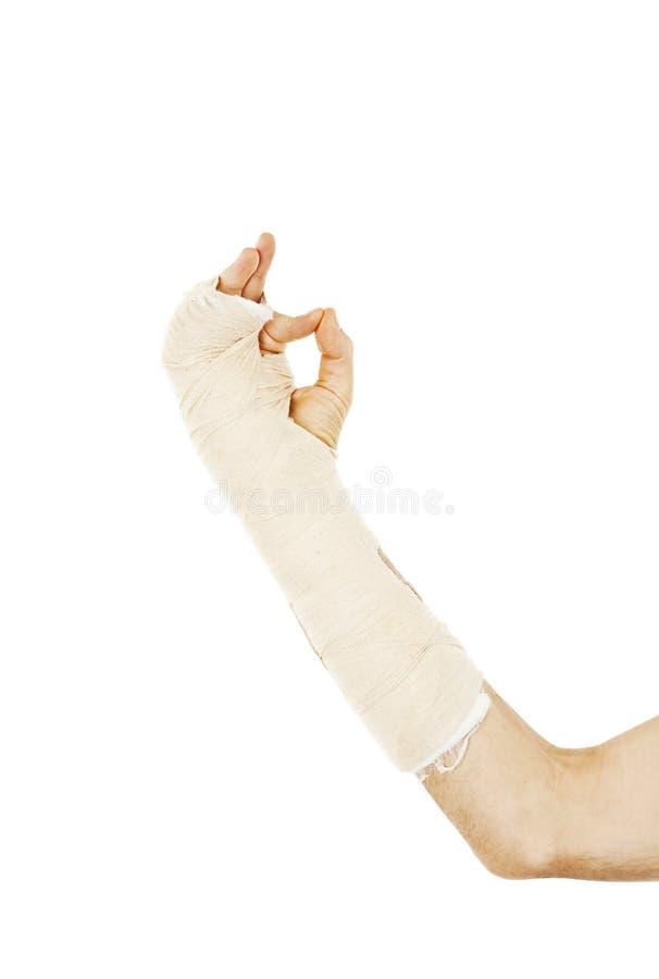 Osso de braço quebrado no molde que faz o sinal APROVADO imagem de stock