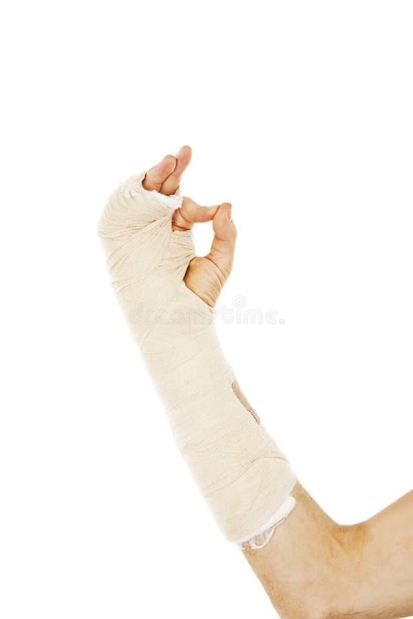 Osso de braço quebrado no molde que faz o sinal APROVADO fotografia de stock