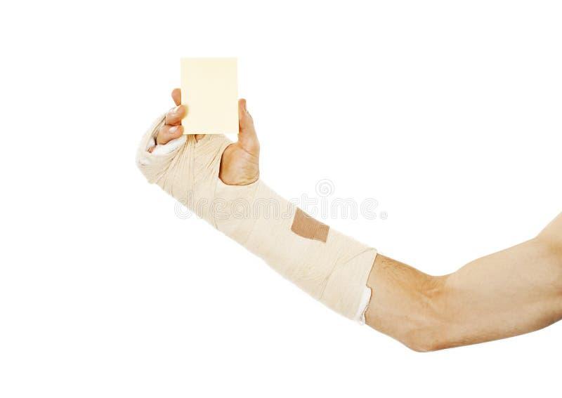 Osso de braço quebrado no molde que guarda um cartão vazio foto de stock