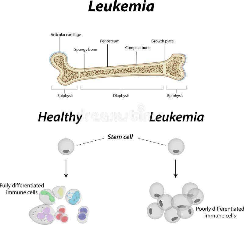 Osso di leucemia illustrazione di stock