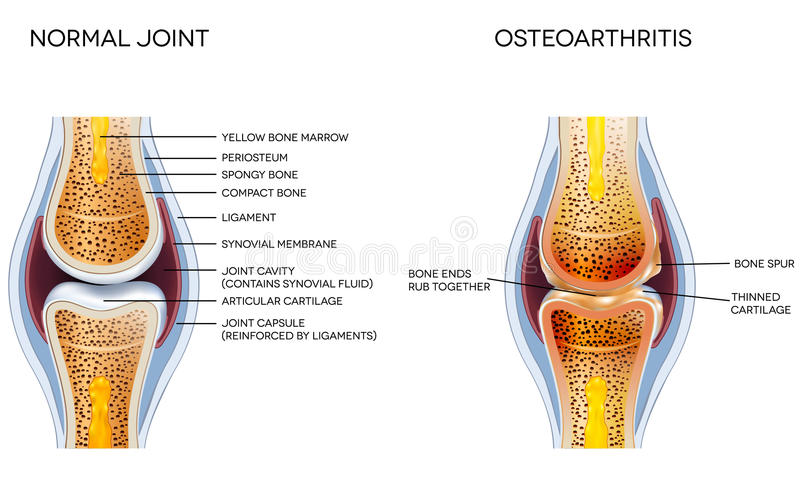 ostéoarthrite illustration libre de droits