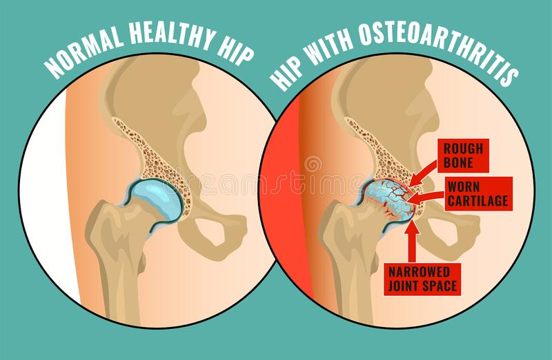 Ostéoarthrite Infographic de hanche illustration stock