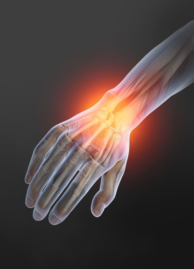 Ostéoarthrite, joint de poignet douloureux, illustration 3D illustration de vecteur