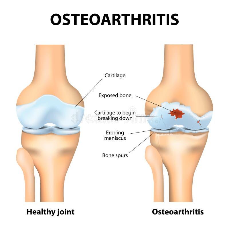 Ostéoarthrite ou arthrite illustration de vecteur