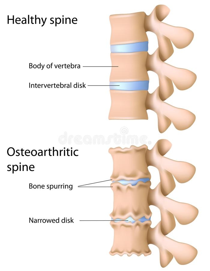 Osteoarthritis av ryggen stock illustrationer