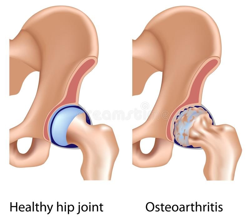 Osteoarthritis of hip joint vector illustration