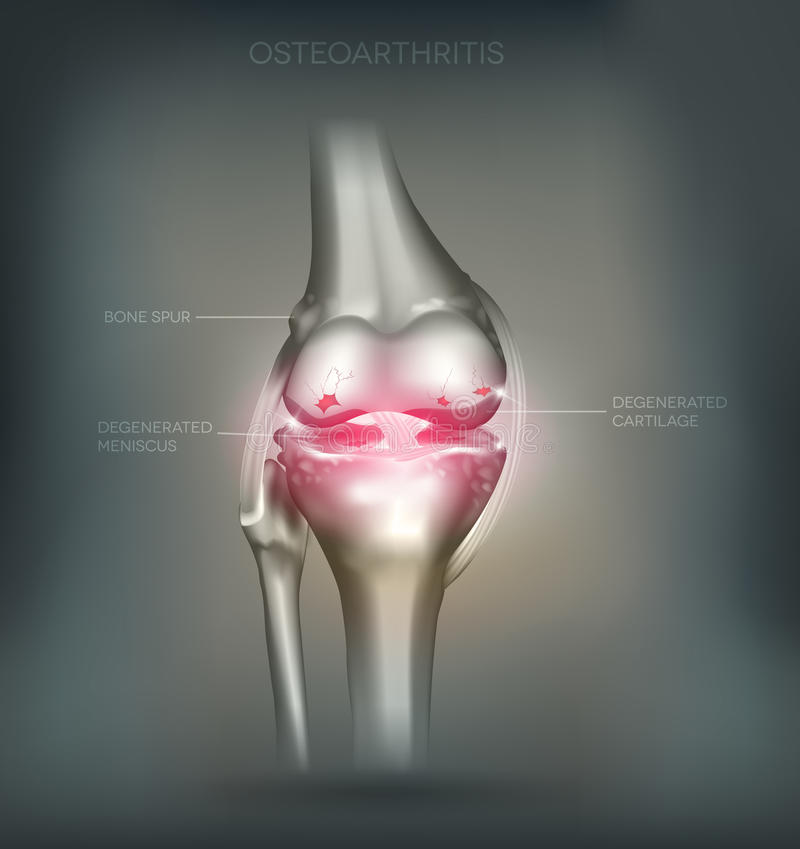 Osteoarthritis knee joint destruction royalty free illustration