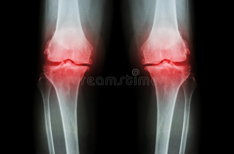 Osteoarthritis Knee ( OA Knee ). Film x-ray both knee ( front view ) show narrow joint space ( joint cartilage loss ) , osteophyte stock photos