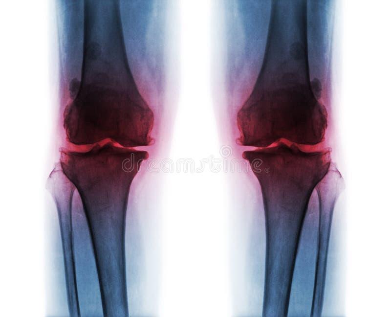 Osteoarthritis oba kolano fotografia stock