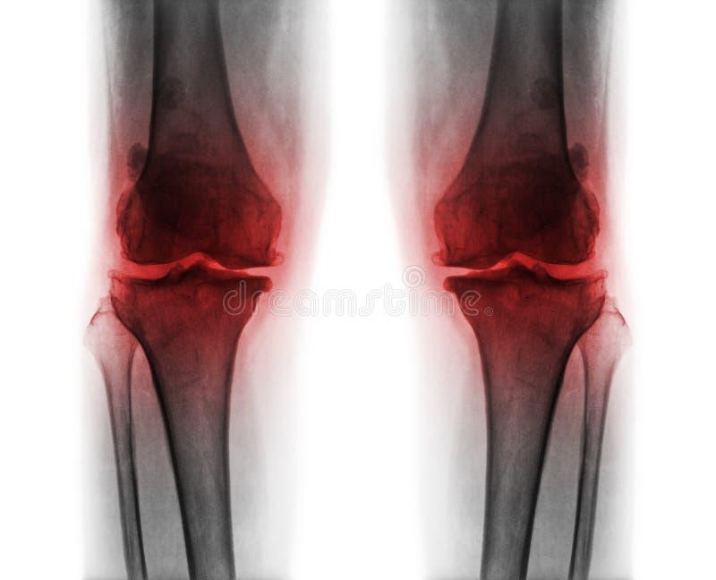 Osteoarthritis oba kolano obraz royalty free