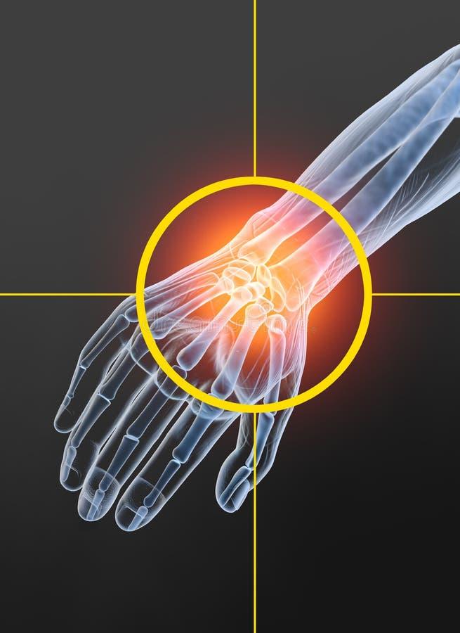 Osteoarthritis, painful wrist joint, 3D illustration 2 stock illustration