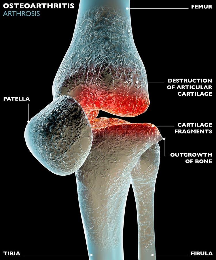 Osteoartrite royalty illustrazione gratis