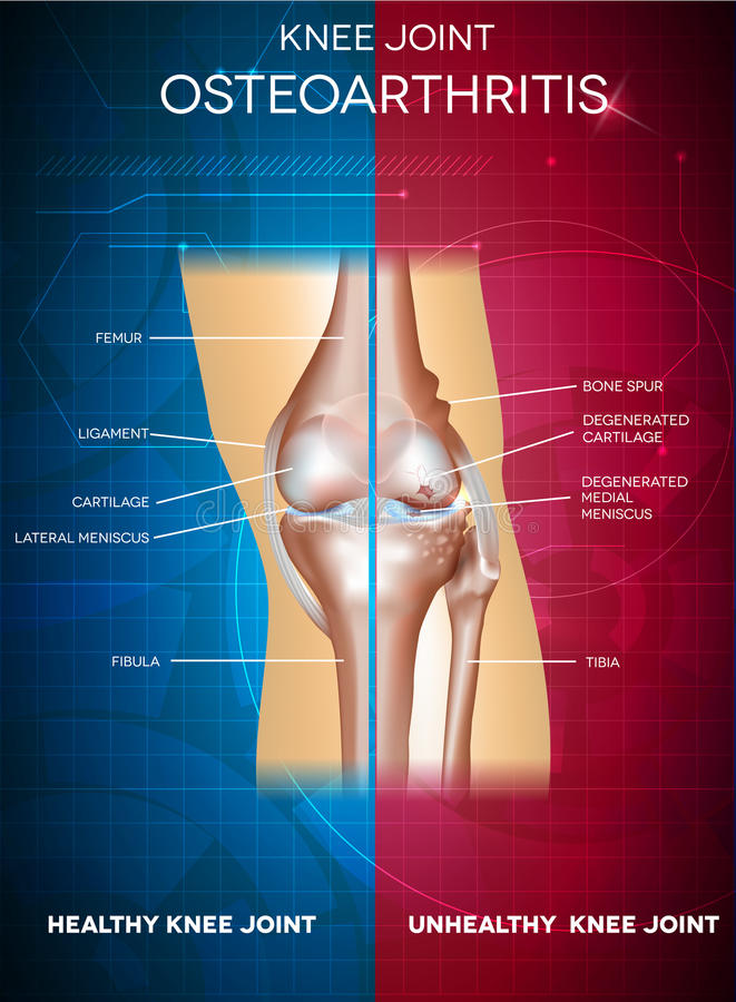 osteoartrite illustrazione di stock