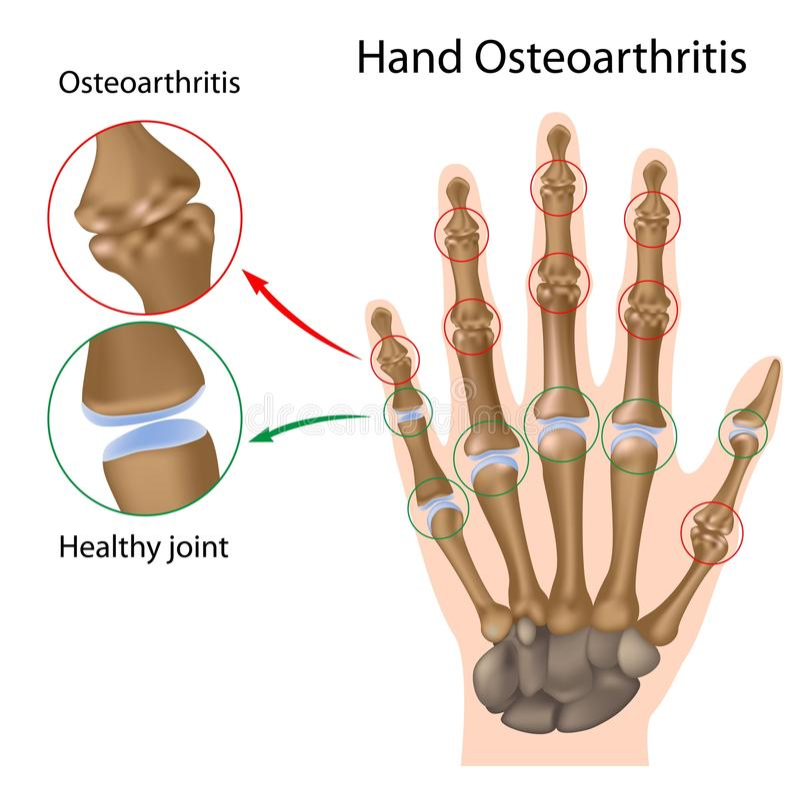 Osteoartritis de la mano ilustración del vector