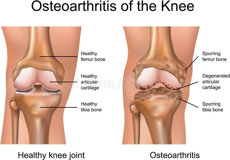 Osteoartritis de la rodilla stock de ilustración