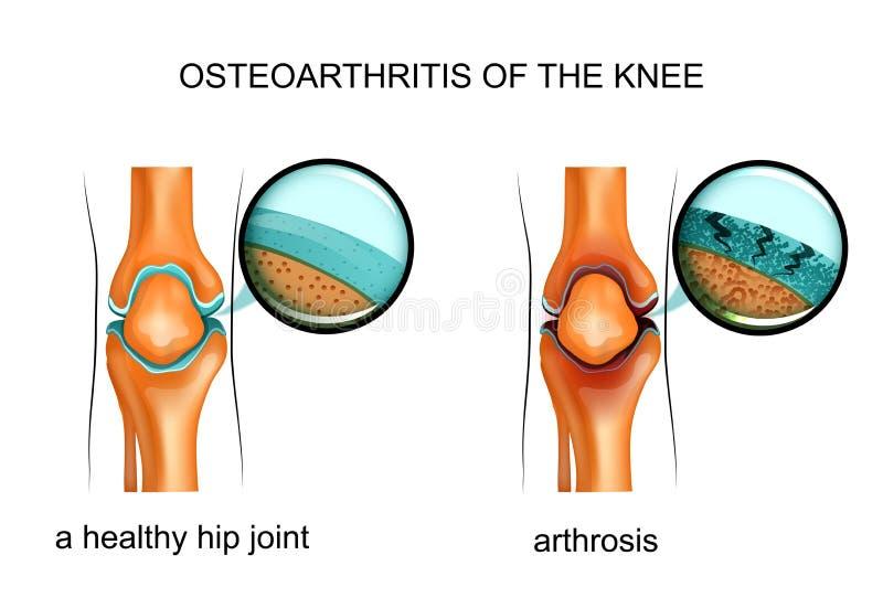 Osteoartritis de la rodilla ilustración del vector