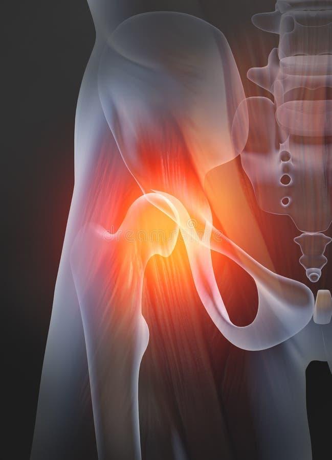 Osteoartritis, junta de cadera dolorosa, ejemplo 3D libre illustration