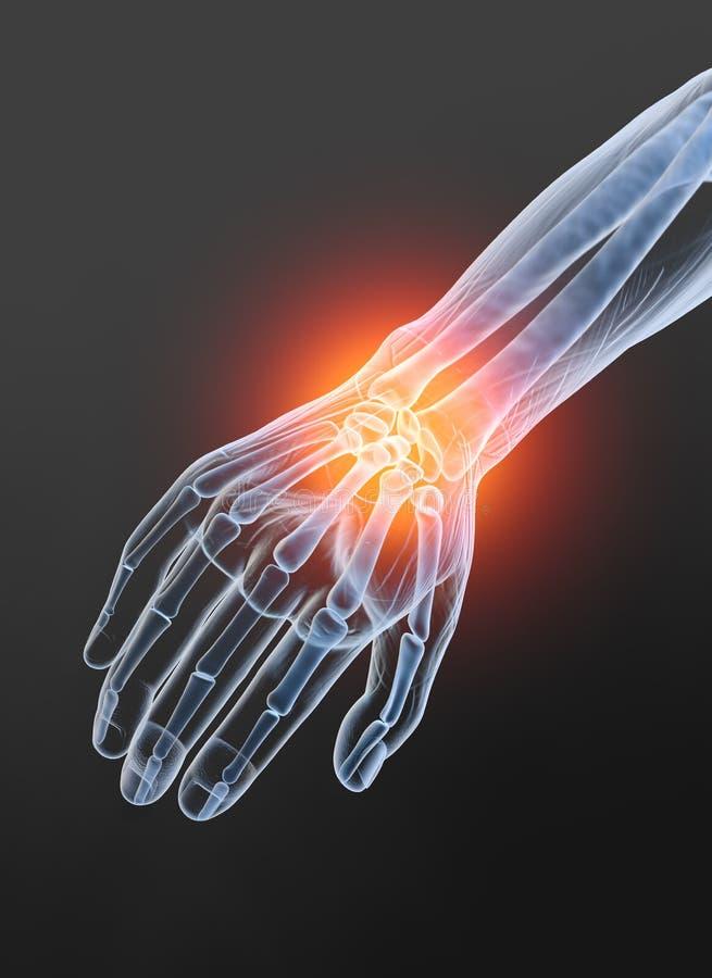 Osteoartritis, junta de muñeca dolorosa, ejemplo 3D en fondo negro ilustración del vector