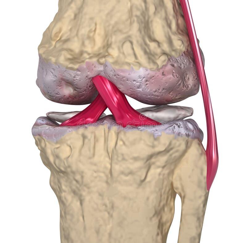Osteoartritis: Junta de rodilla con los ligamentos ilustración del vector