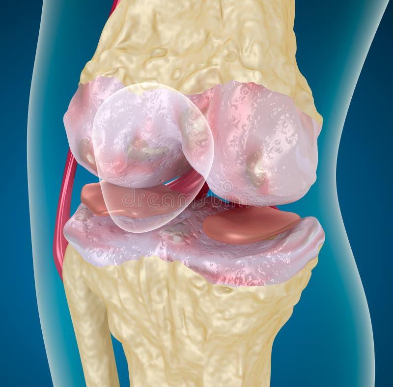 Osteoartritis: Knie stock illustratie