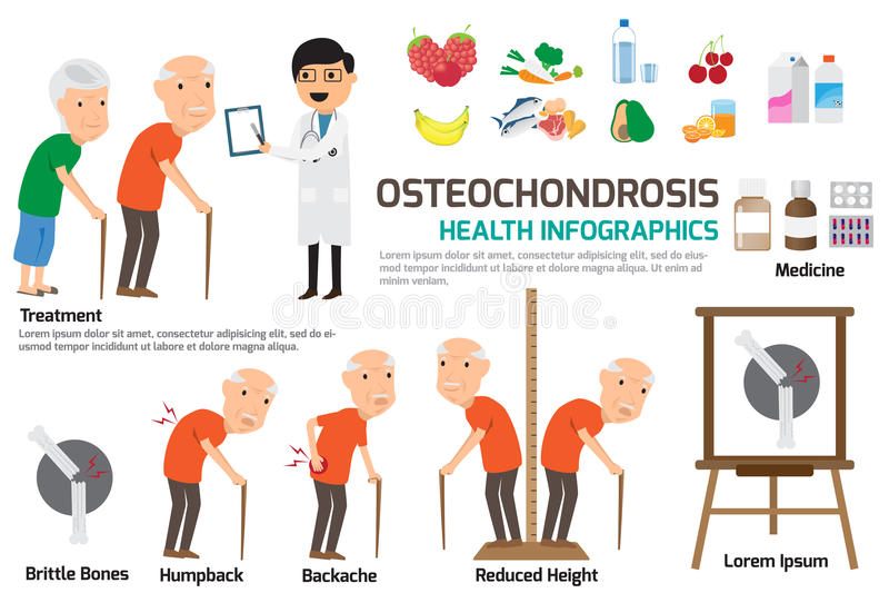 Osteochondrosis Infographics beståndsdel Beståndsdel av osteochondrosisen stock illustrationer