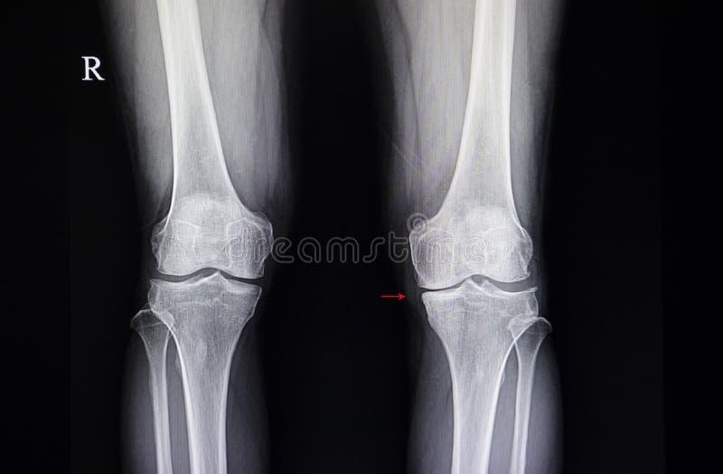 osteodistrofia do joelho fotos de stock