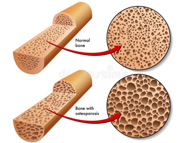 Osteoporose vector illustratie