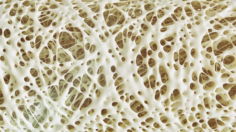 Osteoporose brachte e-hoh Details - Stadium 4 - Wiedergabe 3d voran vektor abbildung