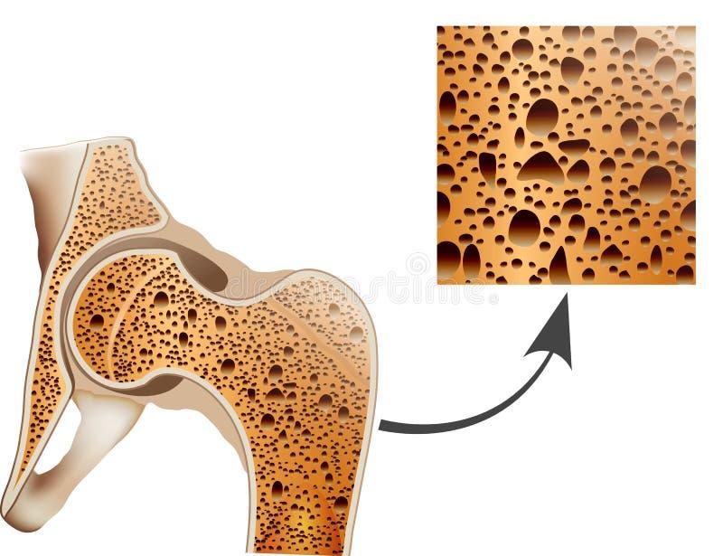 Osteoporose no osso do fêmur ilustração do vetor