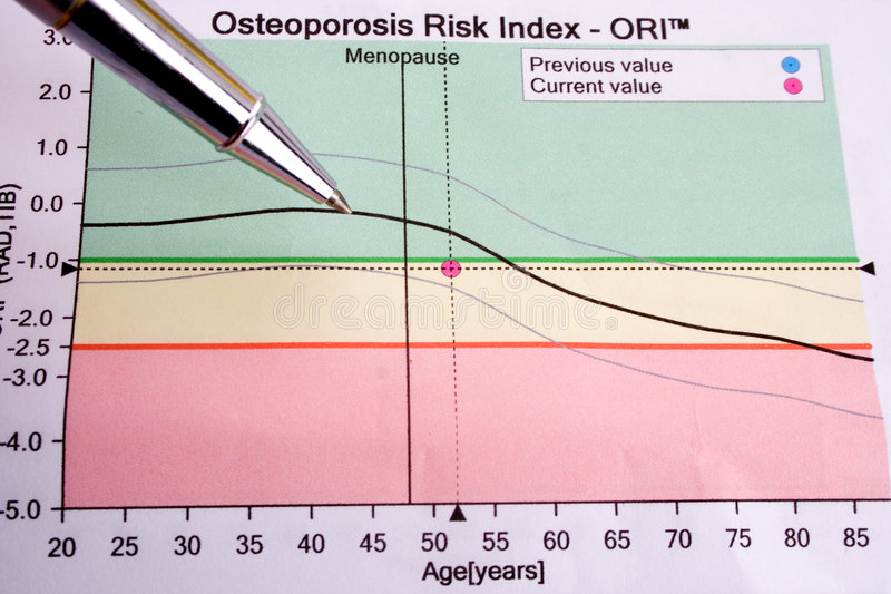 Osteoporosis. Pen showing diagram on osteoporosis risk stock photo