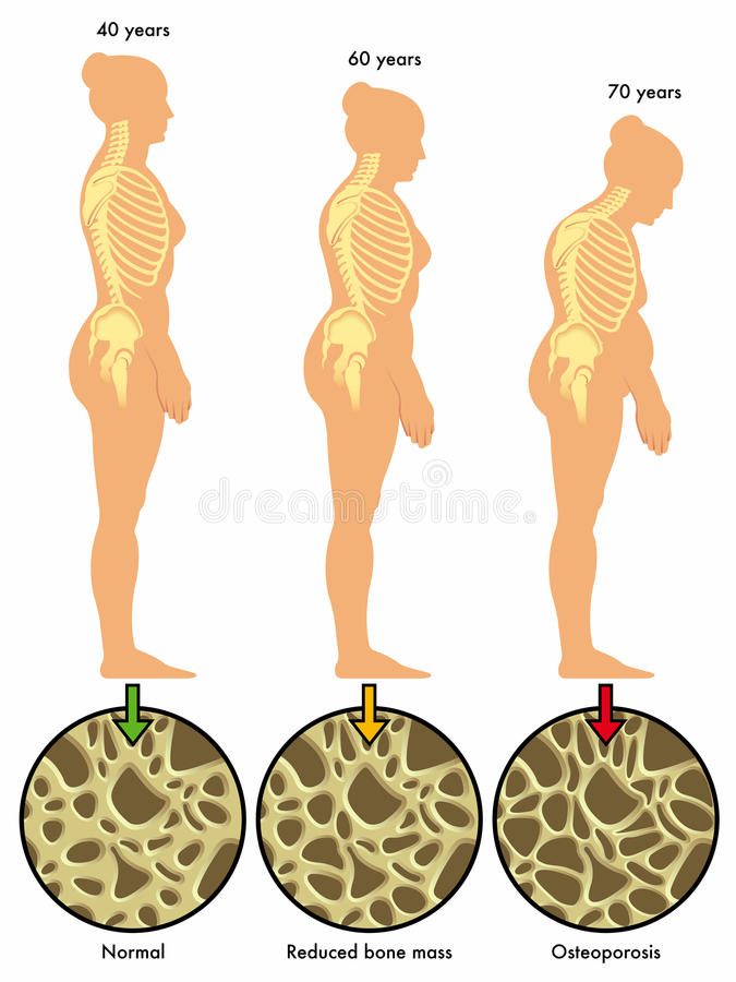 Osteoporosis 3 royaltyfri illustrationer