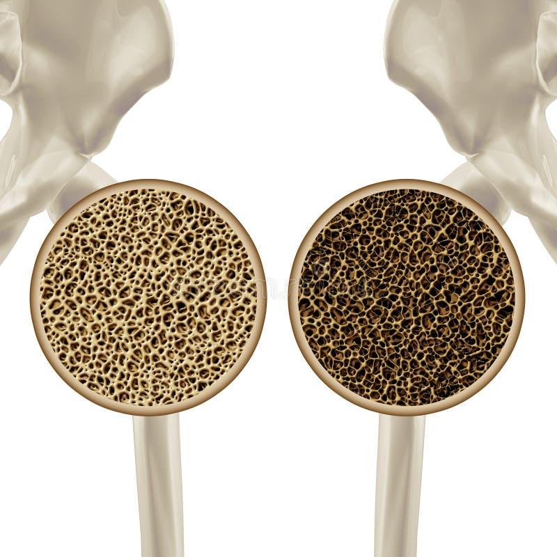 osteoporosis stock de ilustración