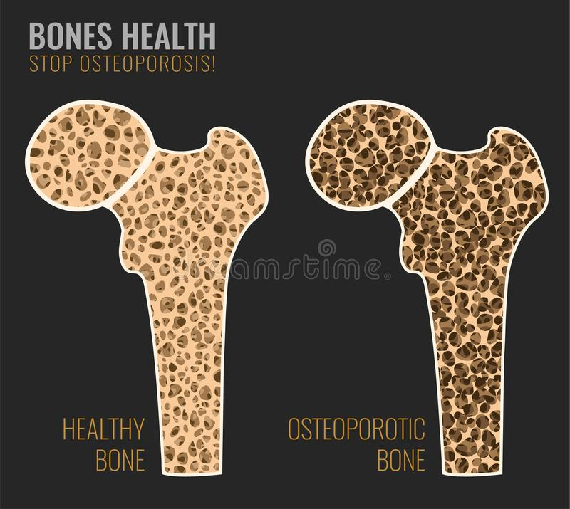 Osteoporosis Bone image. Osteoporosis cross section image. Osteoporosis bone and healthy bone in comparison isolated on a dark grey background. Vector vector illustration