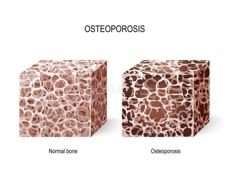 Osteoporosis. Bone tissue royalty free illustration