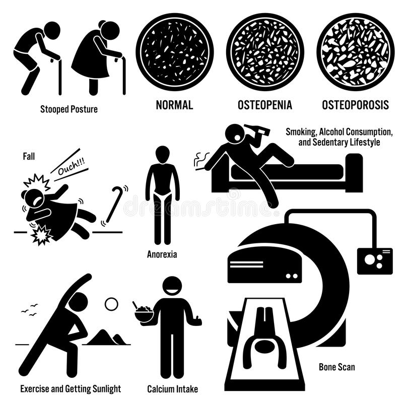 Osteoporosis Clipart. Set of illustrations for osteoporosis disease which include the symptoms, causes, risk factors, and the diagnosis for the illness royalty free illustration