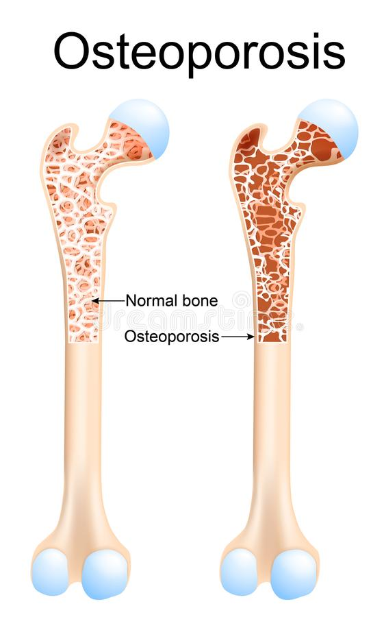 Osteoporosis. Is a disease of bones that leads to an increased risk of fracture. Healthy femur and bone with royalty free illustration