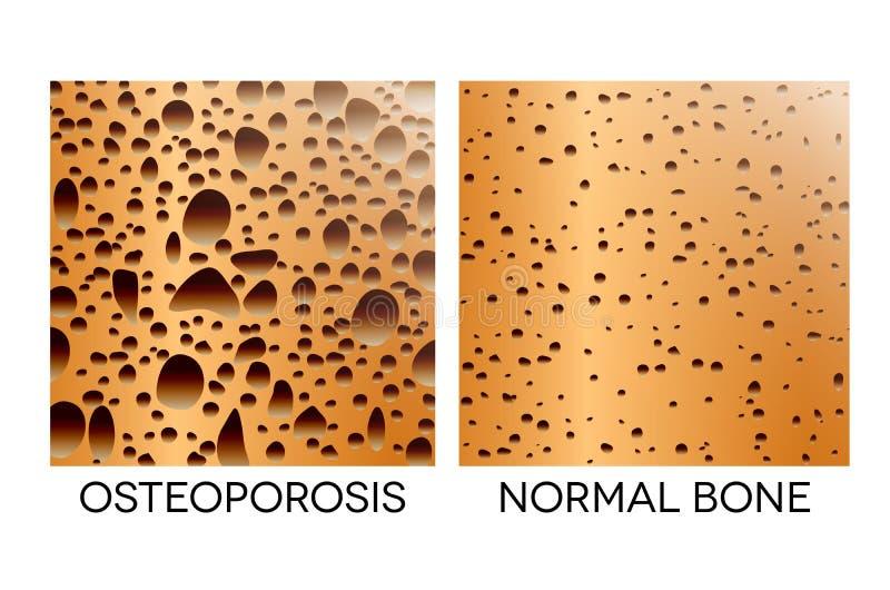 Osteoporosis. Human bone anatomy. Medical illustration healthy bone and unhealthy bone vector illustration