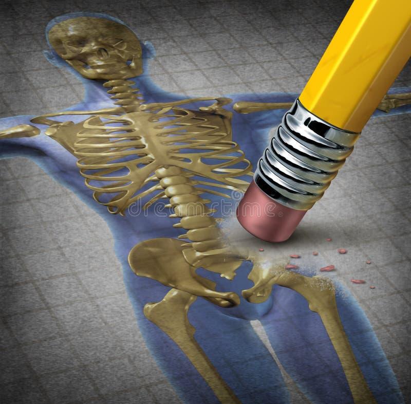 Osteoporosis humana stock de ilustración