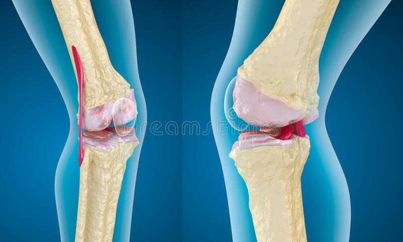 Osteoporosis of the knee joint royalty free illustration