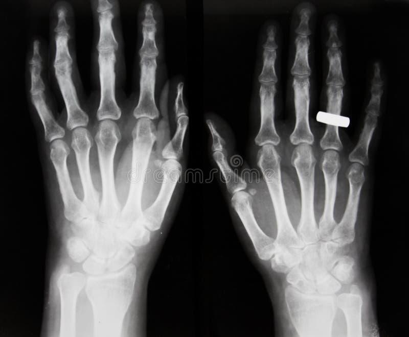Osteoporosis, osteoartrosis imagenes de archivo