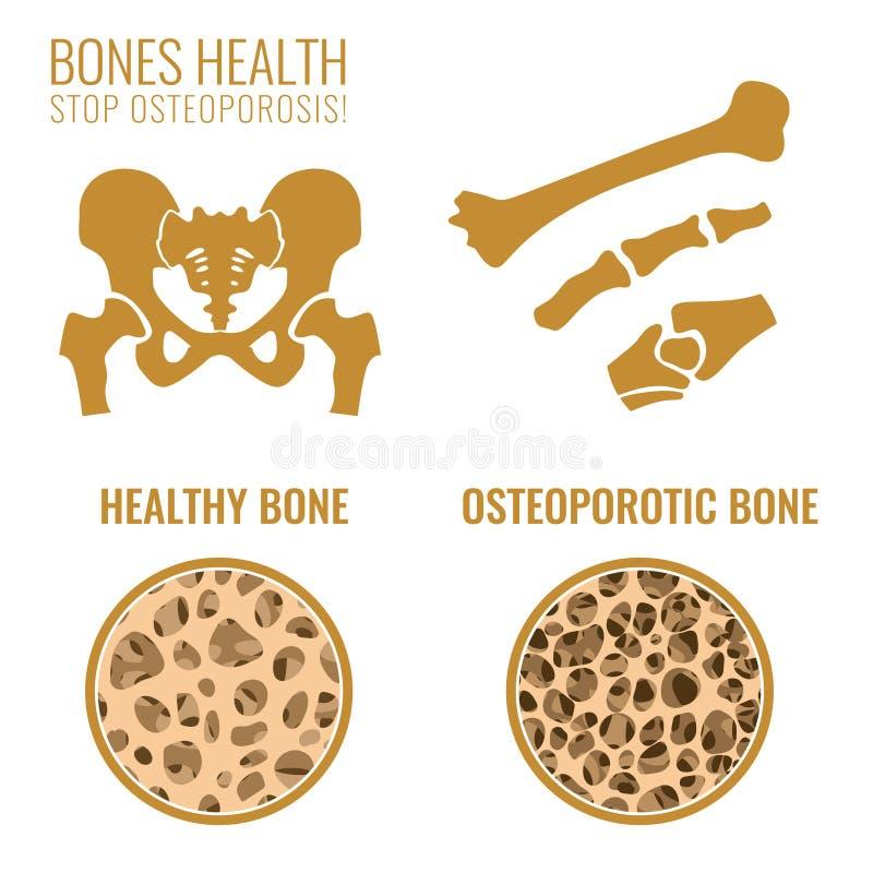 Osteoporosis Reżyseruje wizerunek ilustracji