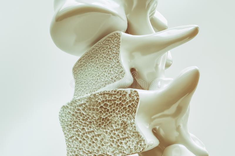 Osteoporosis on the spine - 3d rendering. Osteoporosis on the spine -- 3d rendering vector illustration
