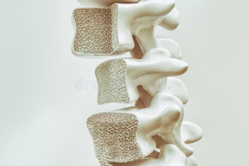 Osteoporosis on the spine - 3d rendering. Osteoporosis on the spine -- 3d rendering royalty free illustration
