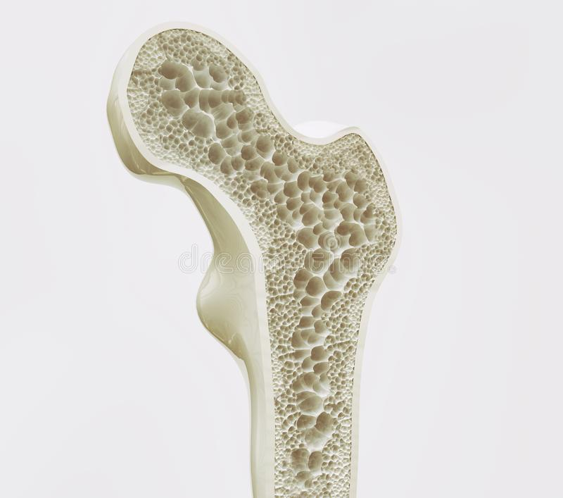 Osteoporosis stage 1 of 4 -- 3d rendering. Osteoporosis stage 3 of 4 - 3d rendering vector illustration