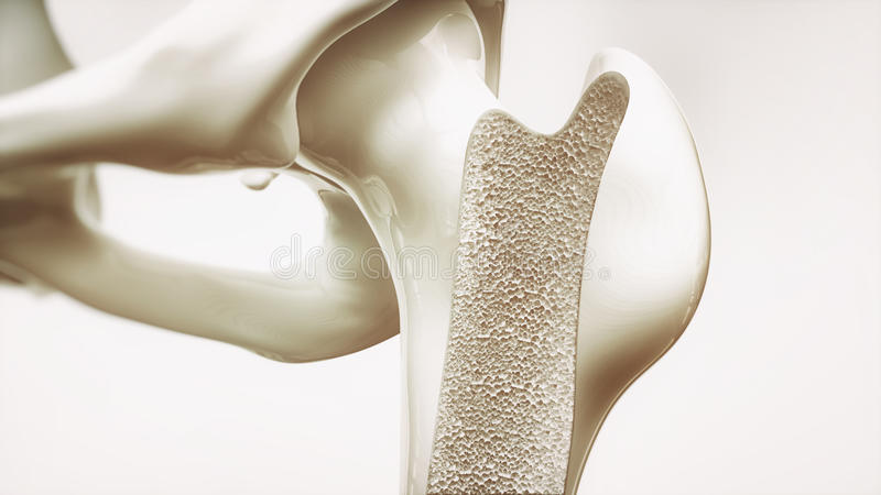 Osteoporosis stage 1 of 4 - upper limb bones - 3d rendering. Osteoporosis stage 1 of 4 - upper limb bones stock illustration