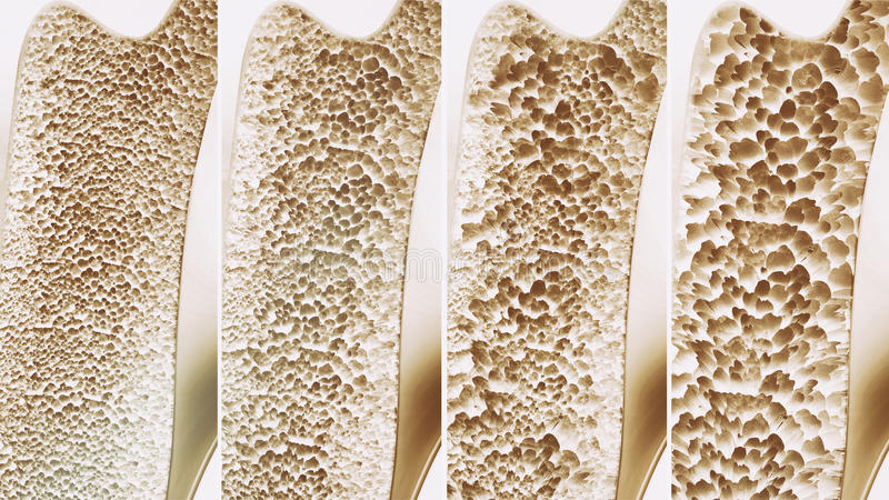 Osteoporosis 4 stages - 3d rendering. Osteoporosis 4 stages in one picture - 3d rendering vector illustration