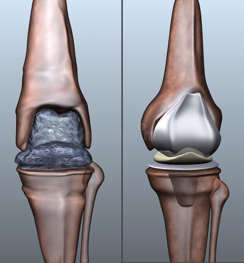Osteoporosis. A stylized 3d visualization showing osteoporosis on the knee ancle and an artifical replacement vector illustration